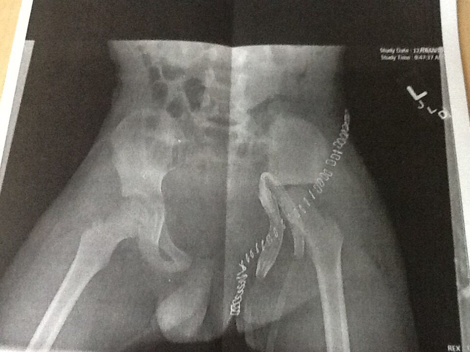 zachary's xray after his surgery